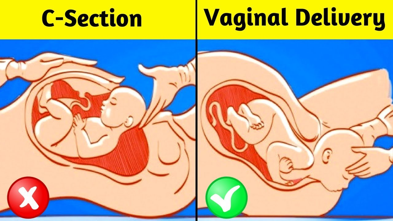 Unknown Risks Complications Of Cesarean Section Delivery Youtube
