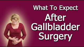 What To Expect After Gallbladder Surgery