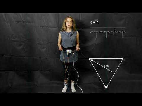 ECG: The augmented limb leads aVF, aVR and aVL