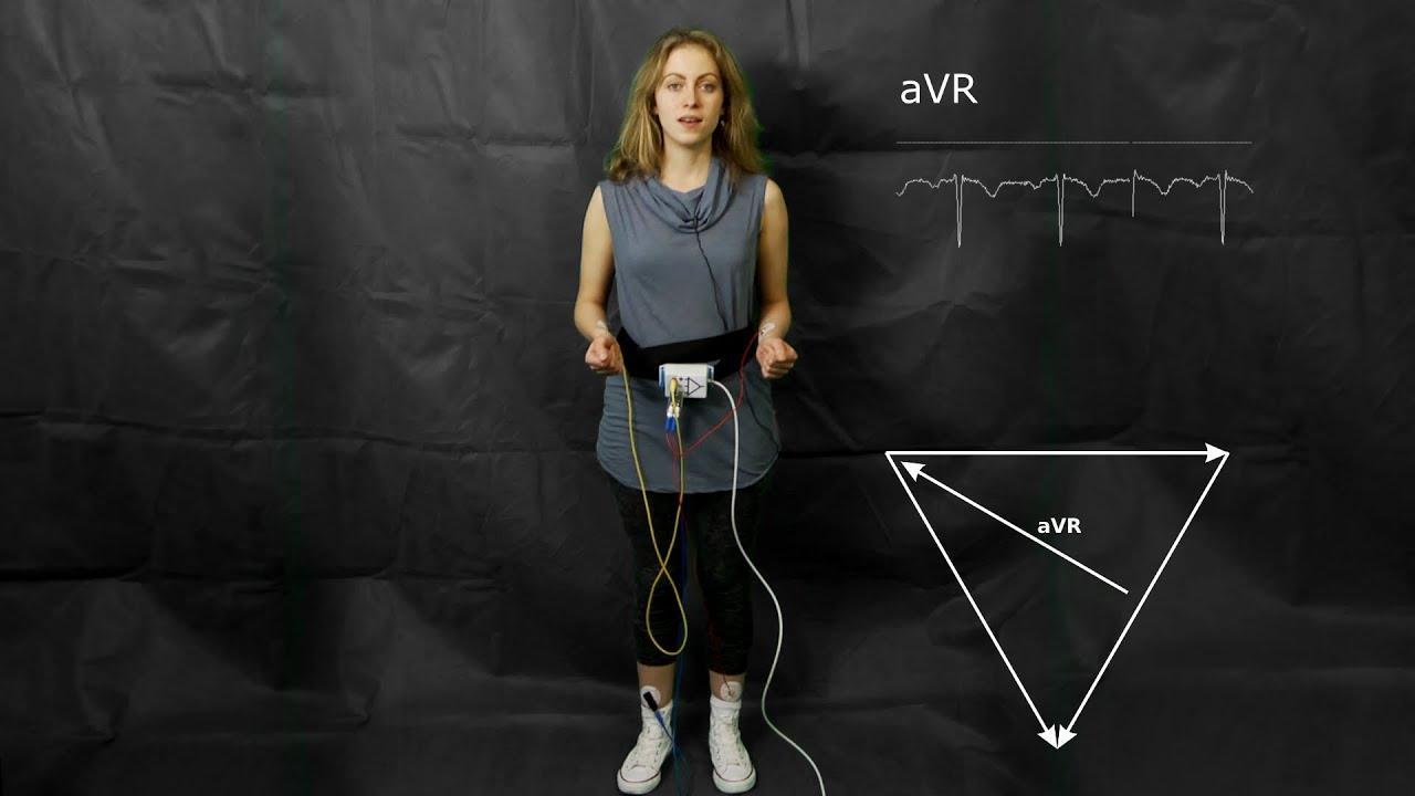 ECG: The augmented limb leads aVF, aVR and aVL - YouTube