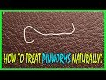 5 Effective Home Remedies To Treat Pinworms Naturally - How To Get Rid Of Pinworms