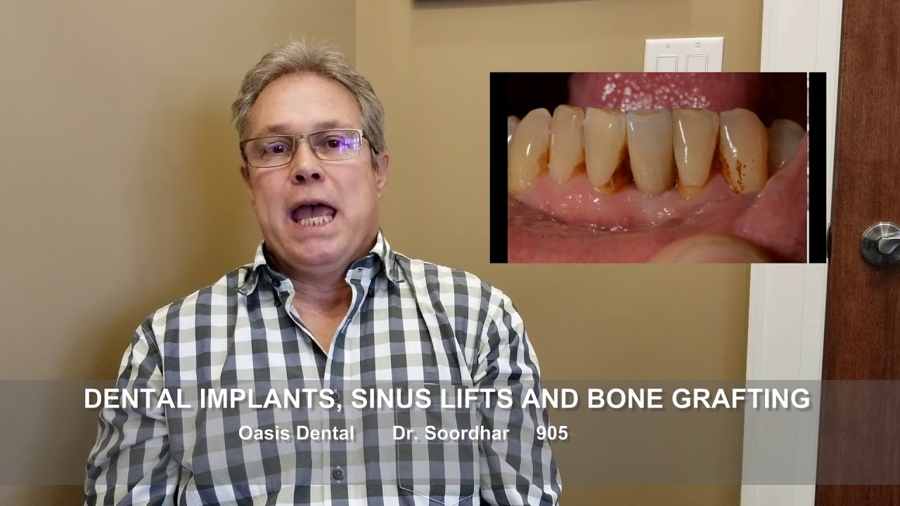 BEFORE & AFTER DENTAL IMPLANT: Failed Root Canal Tooth | Milton, Oakville, Burlington, Mississauga