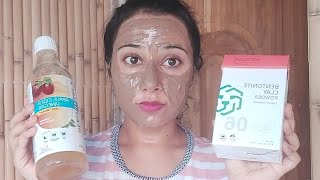 Face mask to Remove pimples acnes tiny bumps blackheads whiteheads open pores Naturally at Home