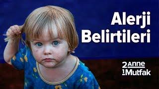 Bebeklerde Alerji Belirtileri Varsa Ne Yapmak Gerekir? | Bebek Gelişimi ve Bebek Sağlığı