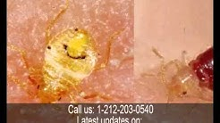 What do Bed Bugs Bites on the Human Body Look Like by NYC Pest Control Exterminator