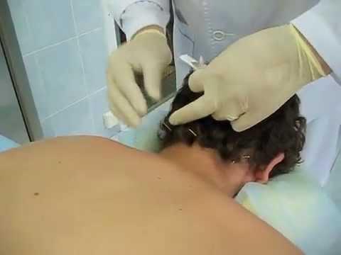Противопоказания операции по замене тазобедренного сустава