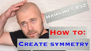 Hairlines Pt2 - Creating Symmetry For Smp Hair Using A 5 Point System | Creative Scalps