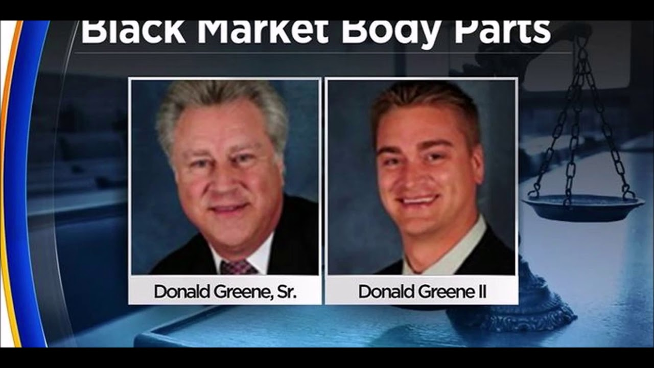 Father & Son Charged With Selling Diseased Body Parts In Alleged Brokering Scheme