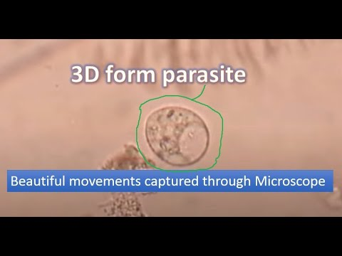 Trichomonas vaginalis-Sexually transmitted parasite