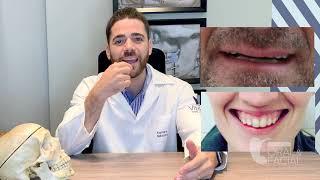 Pra quem é indicado a Cirurgia Ortognática?