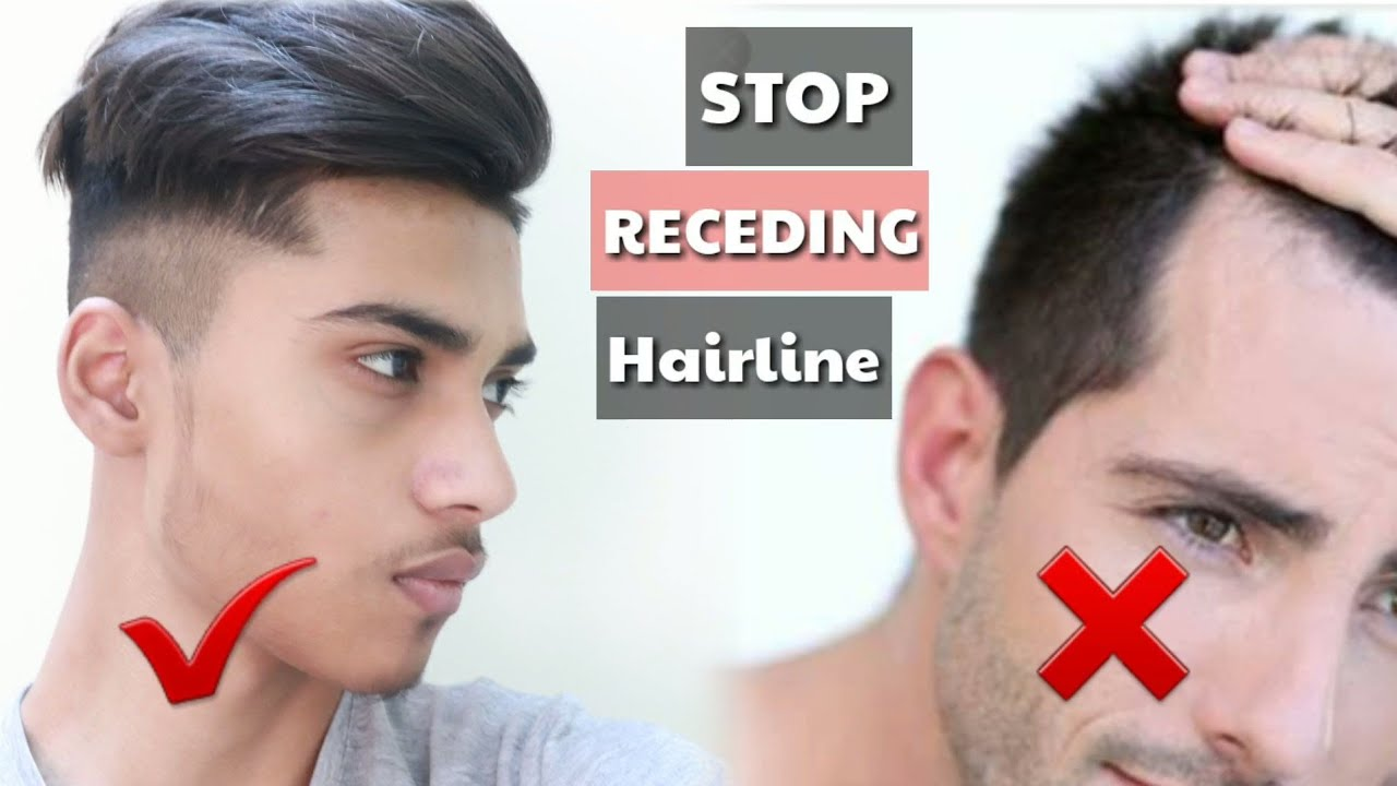 how to stop receding hairline and regrow hair || MAKEURBEST - YouTube
