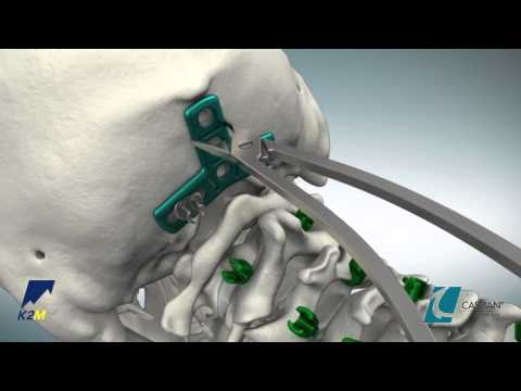 CASPIAN® Occipital Plate Product Animation