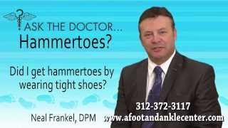 Can I Get Hammertoes From Wearing Tight Shoes? Chicago, Oak Brook, Lincolnwood, IL - Podiatrist