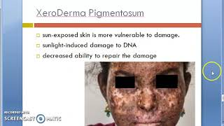 Xeroderma pigmentosum, or XP, is a rare hereditary disease where patients are unable to repair the c.