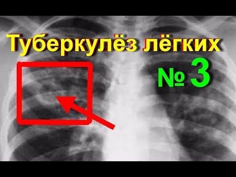 Туберкулез легких. Лечение туберкулеза народными средствами в домашних условиях - № 3 | #edblack
