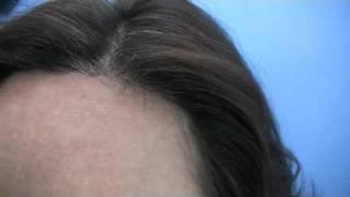 Doctor Wong Hair Transplant - 2536 Grafts - 1 Session