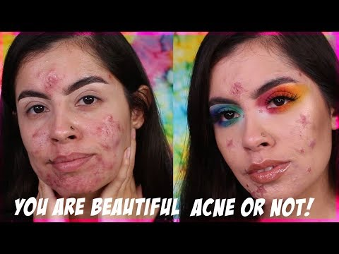 YOU ARE BEAUTIFUL ACNE OR NOT! | Rocio Ceja