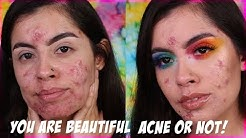 hqdefault - Can You Beautiful Acne