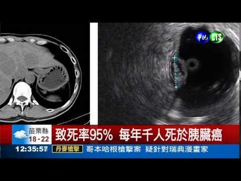 初期難篩 胰臟癌95%致死率