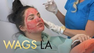 WAGS LA   Natalie Halcro & Olivia Pierson Get Vampire Facials   E!