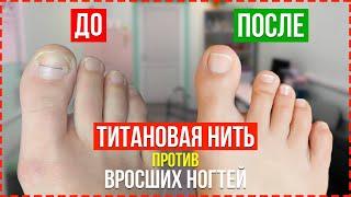 ЛУЧШИЙ Способ Вылечить Вросшие и Скрученные Ногти Титановая Нить Для Коррекции Ногтей