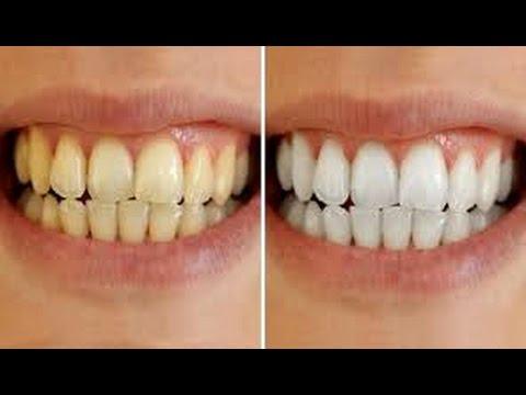 Ini Cara Ampuh Memutihkan Gigi Dalam Waktu 1 Menit Youtube