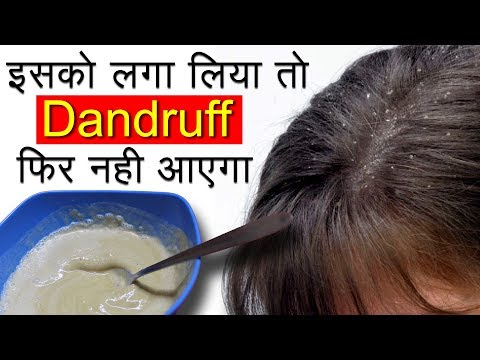 Dandruff कैसे हटाएं   Dandruff Treatment and Hair Growth Home Remedies