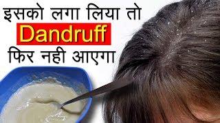 Dandruff कैसे हटाएं | Dandruff Treatment and Hair Growth Home Remedies