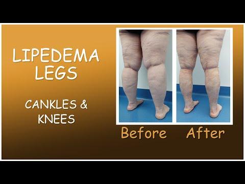 Lipedema Liposuction | Lipo 360° Legs | Immediate Results | Cankles & Knees | Expert Dr. Thomas Su
