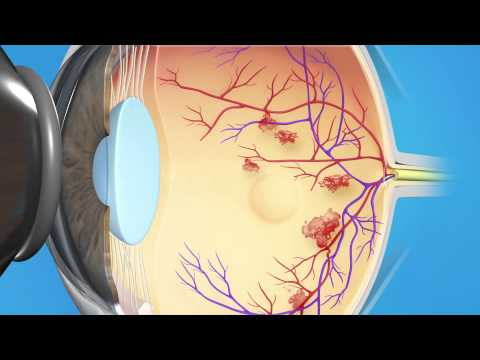 Diabetic Laser Macular Edema