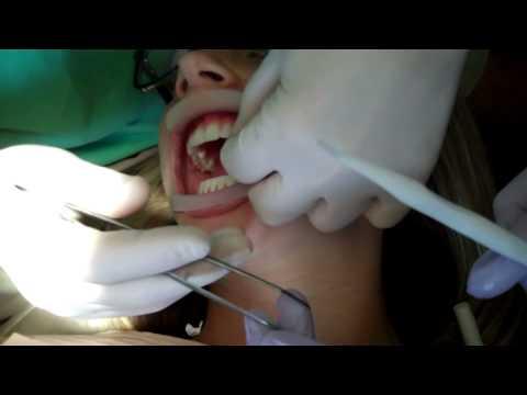 No Prep Porcelain Veneers - Orlando FL Dentist