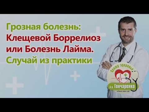 Клещевой боррелиоз или болезнь Лайма. Диагностика и лечение у пациента.