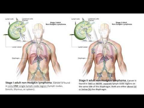 Leukemia Lymphoma Multiple Myeloma Lecture