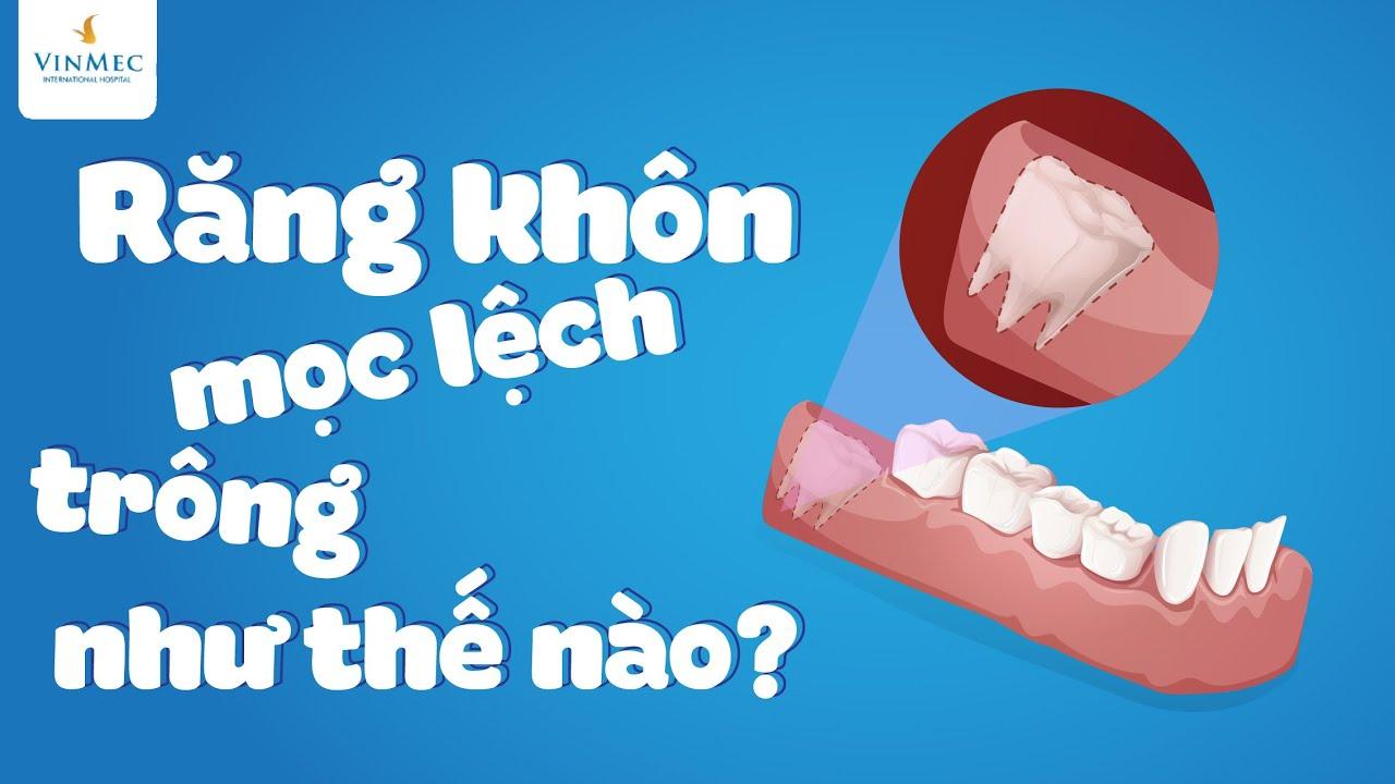 Răng khôn mọc lệch trông như thế nào?  BS Phạm Thị Hiền, BV Vinmec Hải Phòng