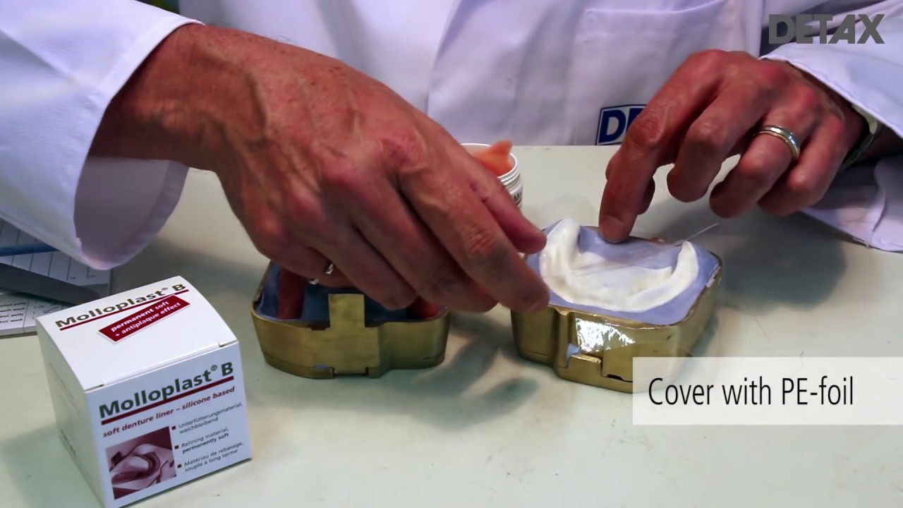 Molloplast b permanently soft relining silicone youtube solutioingenieria Image collections