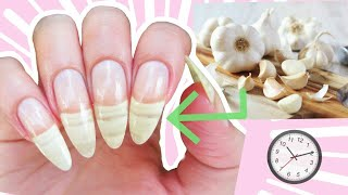 How To Grow Your Nails Fast With Garlic!✅ Nail Care Routine 2020!