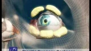 Blepharoplasty or Eyelid Surgery