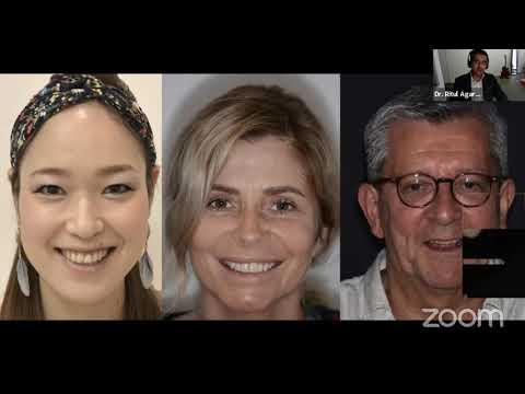 LIVE Webinar : Principles of anterior esthetics