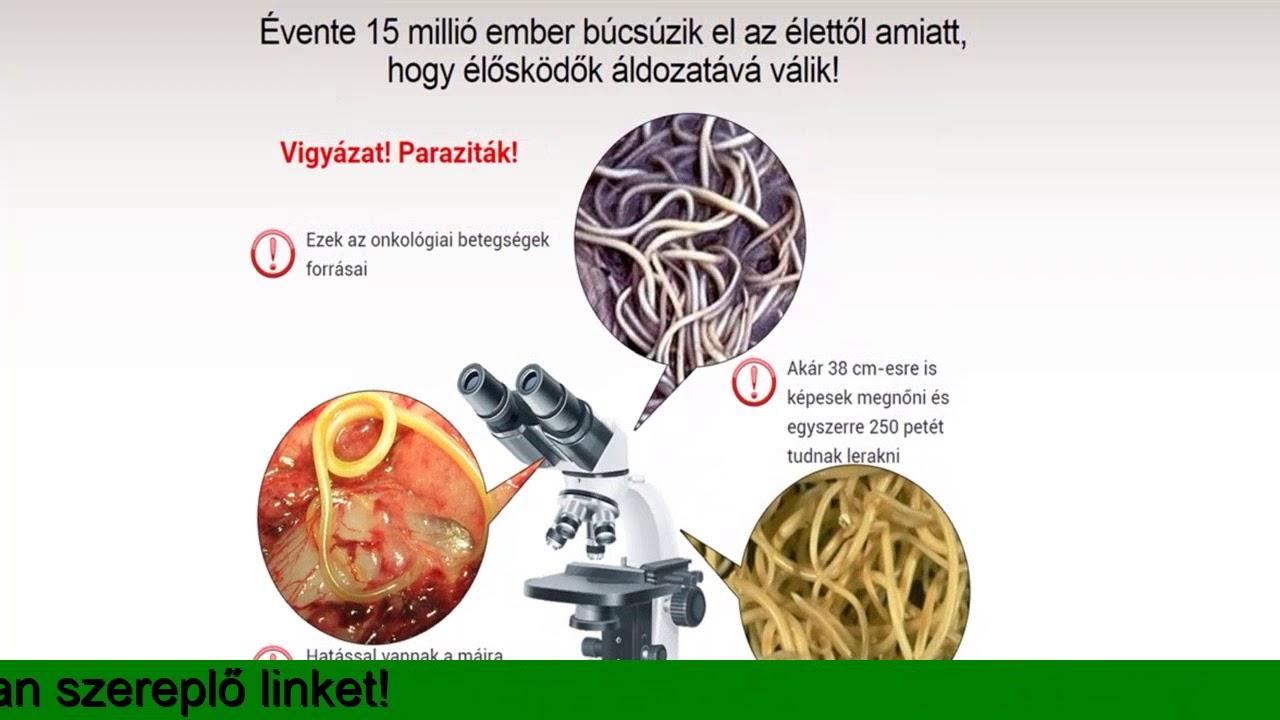 paraziták az epehólyag népi gyógymódjaiban