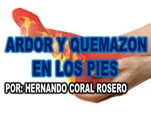 ARDOR Y QUEMAZON EN LOS PIES