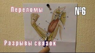 Урок армрестлинга 6. Переломы, разрывы связок(Урок армрестлинга 6. В этом видео речь идет о переломах костей, разрывах и надрывах связок, а так же - как..., 2014-01-31T20:54:59.000Z)