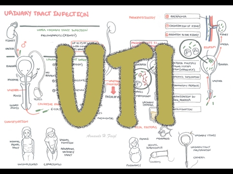 Urinary Tract Infection - Overview (signs and symptoms, pathophysiology, causes and treatment)