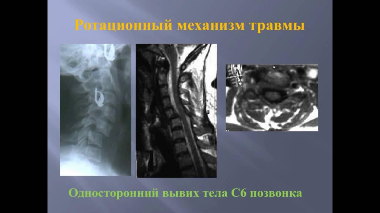 Травма шейного отдела позвоночника, часть 3