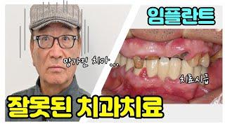 이천 임플란트 / 과거 잘못된 치과 치료로 치아가 빠진…