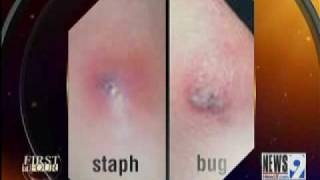 Repeat youtube video Bug Bites vs. Staph Infections