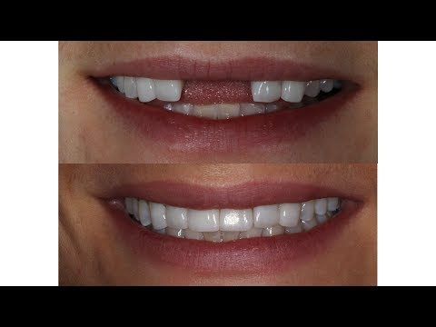 missing-teeth- -implant-crowns- -before-and-after- -case-2