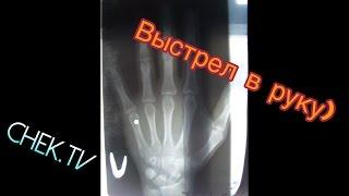Парень прострелил руку с пневматического пистолета (HD)
