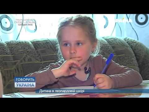 Говорить Україна. Дитина в леопардовій шкірі. Шепетівка