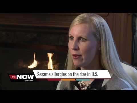 Sesame Allergies