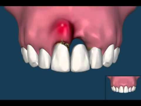 Клиника Имплант - implant-